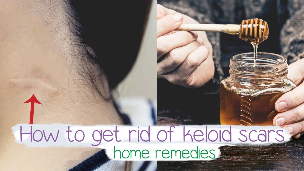 how to get rid of keloid scars Fast | Home remedy 💚