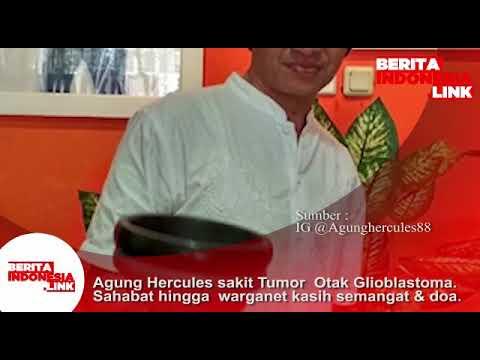 Agung Hercules sakit Tumor Otak Glioblastoma. Sahabat hingga warganet kasih semangat & Doa.