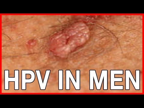 STDs: Genital Warts and HPV in Men