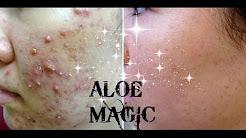 hqdefault - Homemade Aloe Vera Acne Treatment