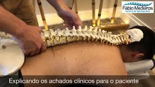 Varizes tratamento quiroprático e