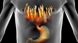 Как избавиться от изжоги и от повышенной кислотности
