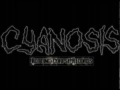 Cyanosis - Bludgeoned