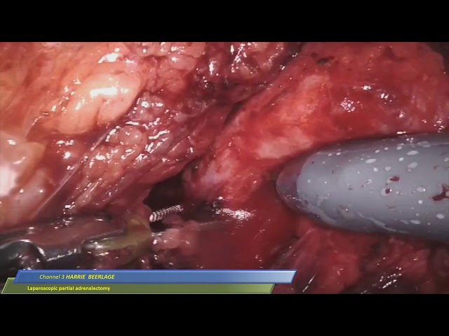 Harrie Beerlage - Laparoscopic Partial Adrenalectomy