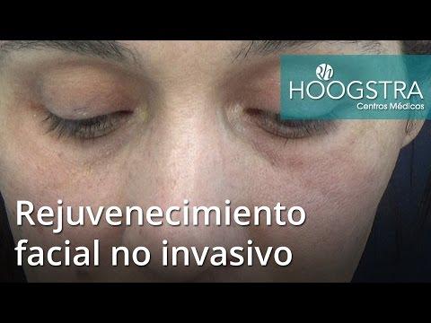 Rejuvenecimiento facial no invasivo (16153)