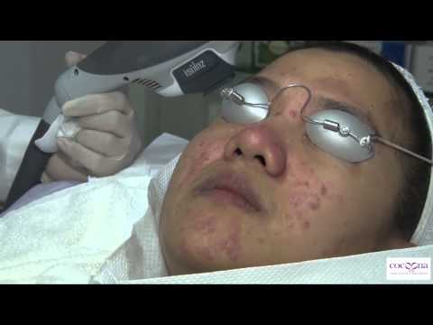 Best Isolaz Laser Acne treatment in Dubai & Delhi at Cocoona Centre