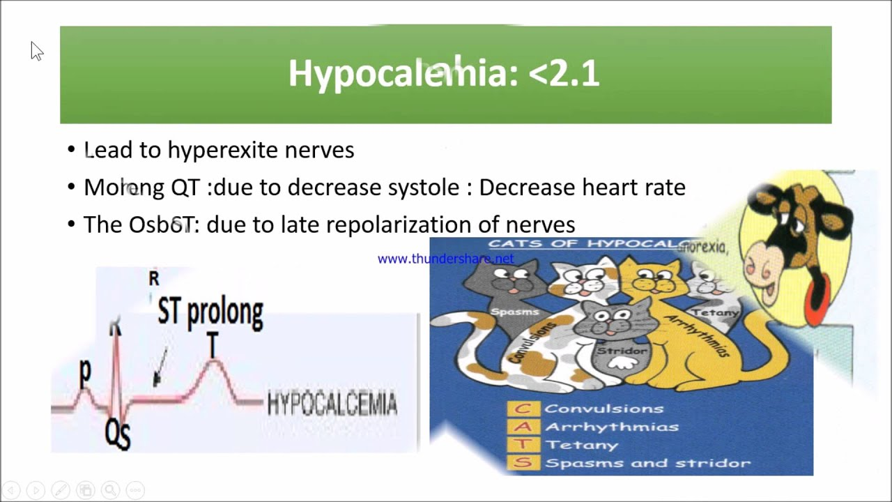 ECG changes with drugs and electrolytes - YouTube