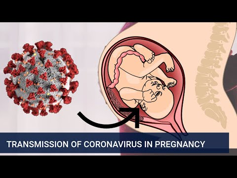 Transmission of coronavirus in pregnancy
