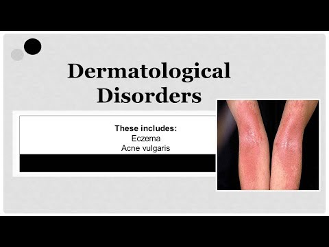 Eczema cause, symptoms, diagnosis, treatment and prevention (dermatological disorder ) 🏥