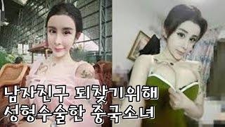 남자친구 되찾기 위해 성형수술한 15살 중국소녀.