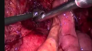 Cystojejunostomy an ideal treatment for pancreatic pseudocyst located distant to the stomach