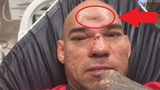 ЖЕСТЬ! Боец БОЕВ БЕЗ ПРАВИЛ проломил череп своему сопернику ударом колена в прыжке