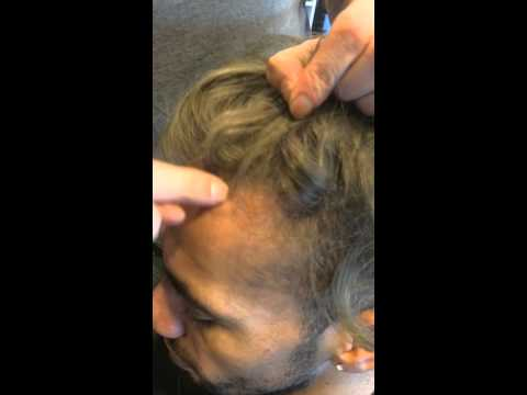 men's-hair-system/-hair-loss-lace-front-for-men--seattle