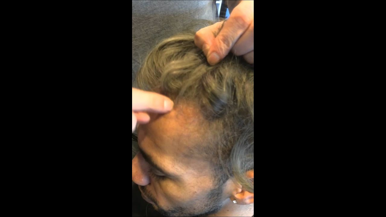 Mens hair system hair loss lace front for men seattle youtube pmusecretfo Gallery