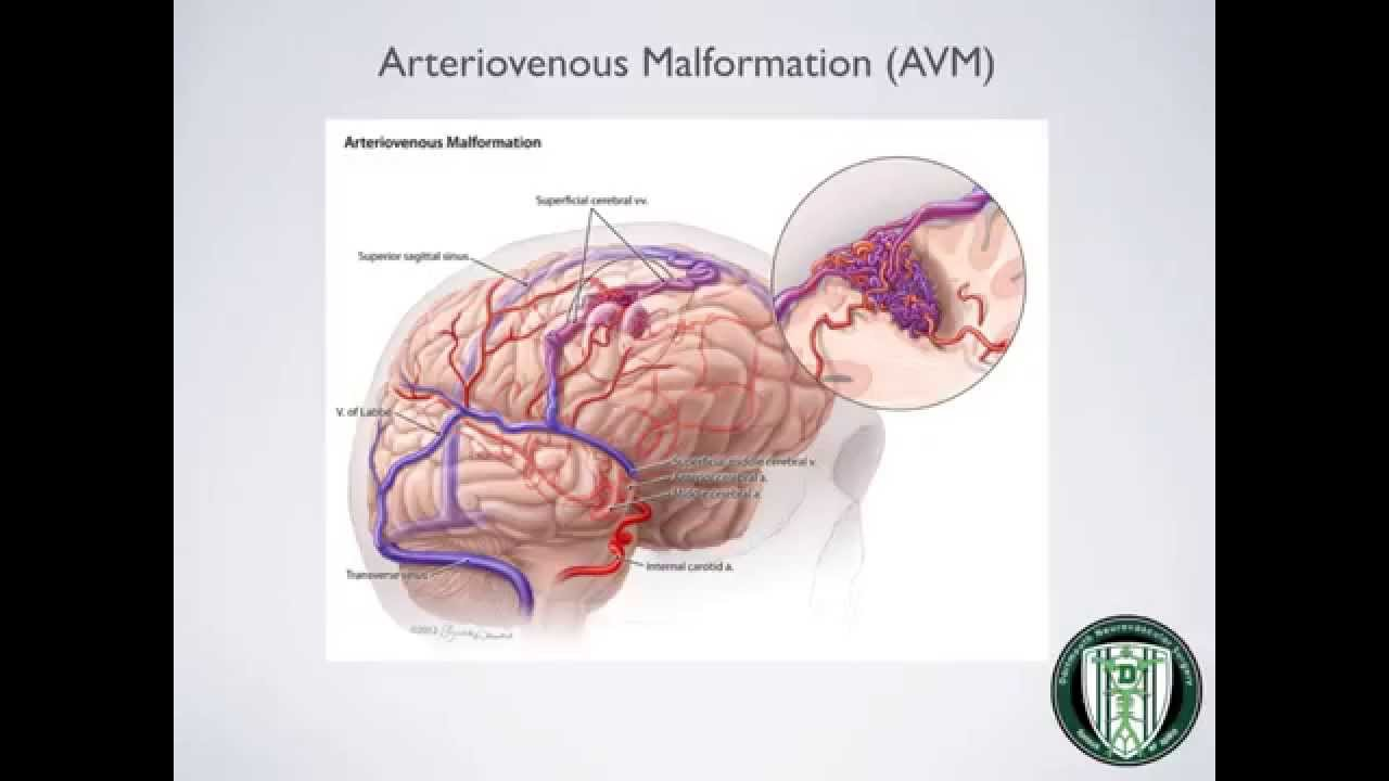 CTH Arteriovenous Malformation (AVM) - YouTube