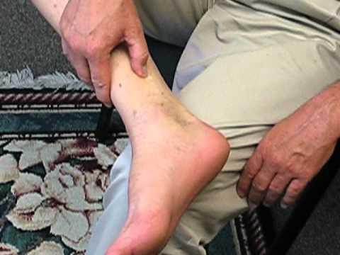Dr. Larry Caldwell - Acupressure Healing Point - Spleen 6