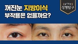 Q. 꺼진눈 지방이식, 부작용은 없을까요?