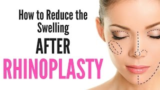 How Reduce Swelling After Undergoing Rhinoplasty