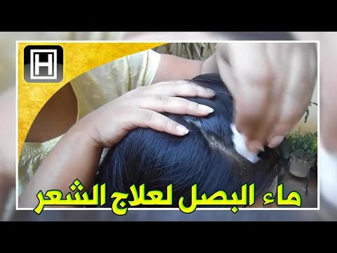 علاج تساقط الشعر بماء البصل وتحفيز نموه بالتجربة وبشهادة كل من جرب الطريقة