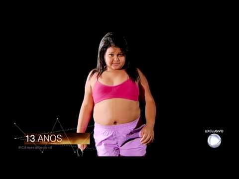 Filha de ex-obesa chega aos 70 kg e luta para emagrecer