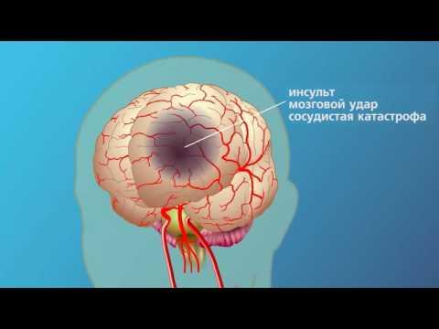 Ишемический инсульт: симптомы, последствия, лечение