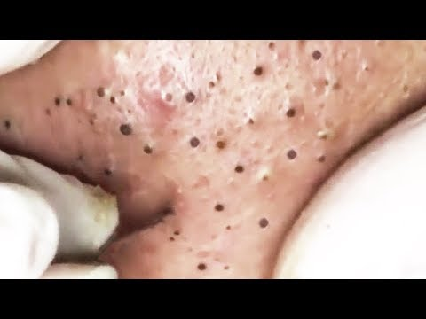 The Most Satisfying Skin Care Video with Relaxing Sleep Music #1