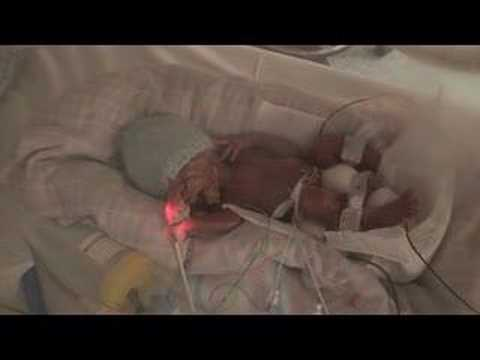 24 week Premature Baby Toby 12 hours old - YouTube