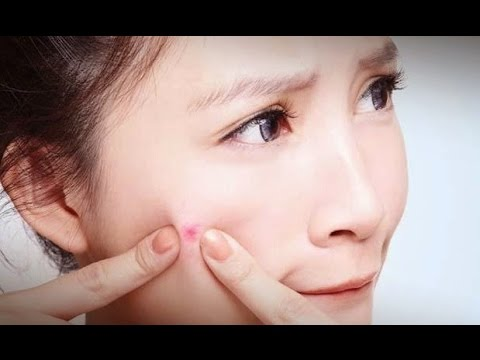 how to get rid of small pimples naturally