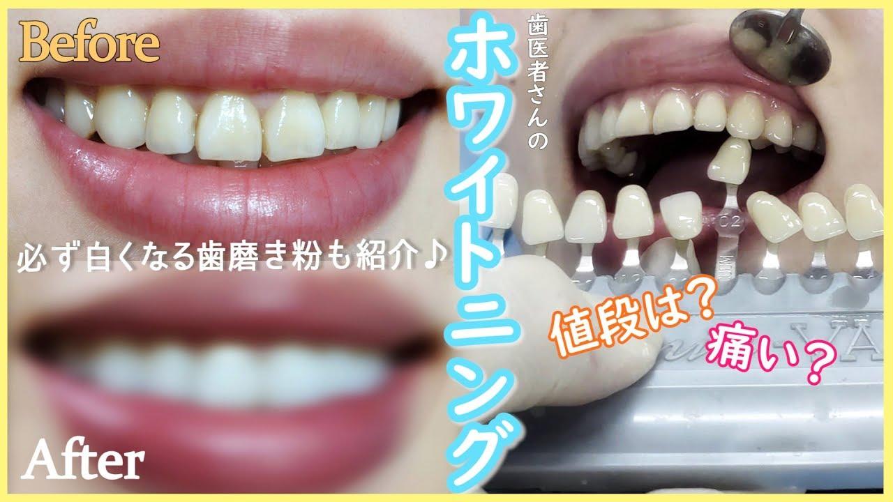 白く 歯 歯磨き粉 が なる 【ドラッグストア編】私が効果を感じた市販のホワイトニング歯磨き粉おすすめ3選