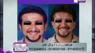 طبيب الحياة - أ.د/وائل غانم استشاري جراحات التجميل - بالصور نتائج مبهرة بعد تجميل الأنف
