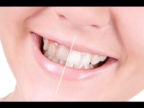 Cara Memutihkan Gigi Secara Alami Cepat Dan Permanen Youtube