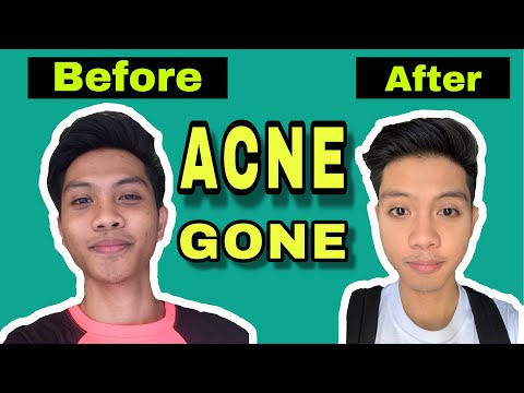 pimple-hacks:-skincare-routine-mura-lang-affordable