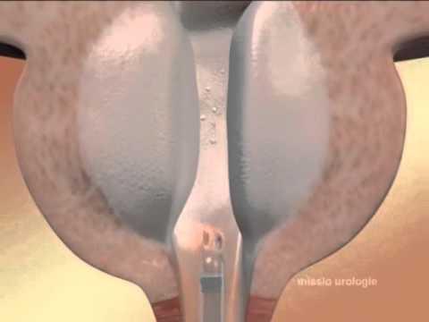 prostatit-rubets-na-prostate