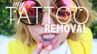 My Tattoo Removal