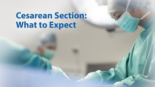 Cesarean Section: What to Expect