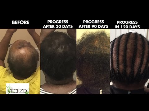 Vitalize 100 Natural Hair Growth Treatment Youtube