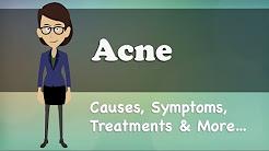 hqdefault - Acne Symptoms Causes Treatment