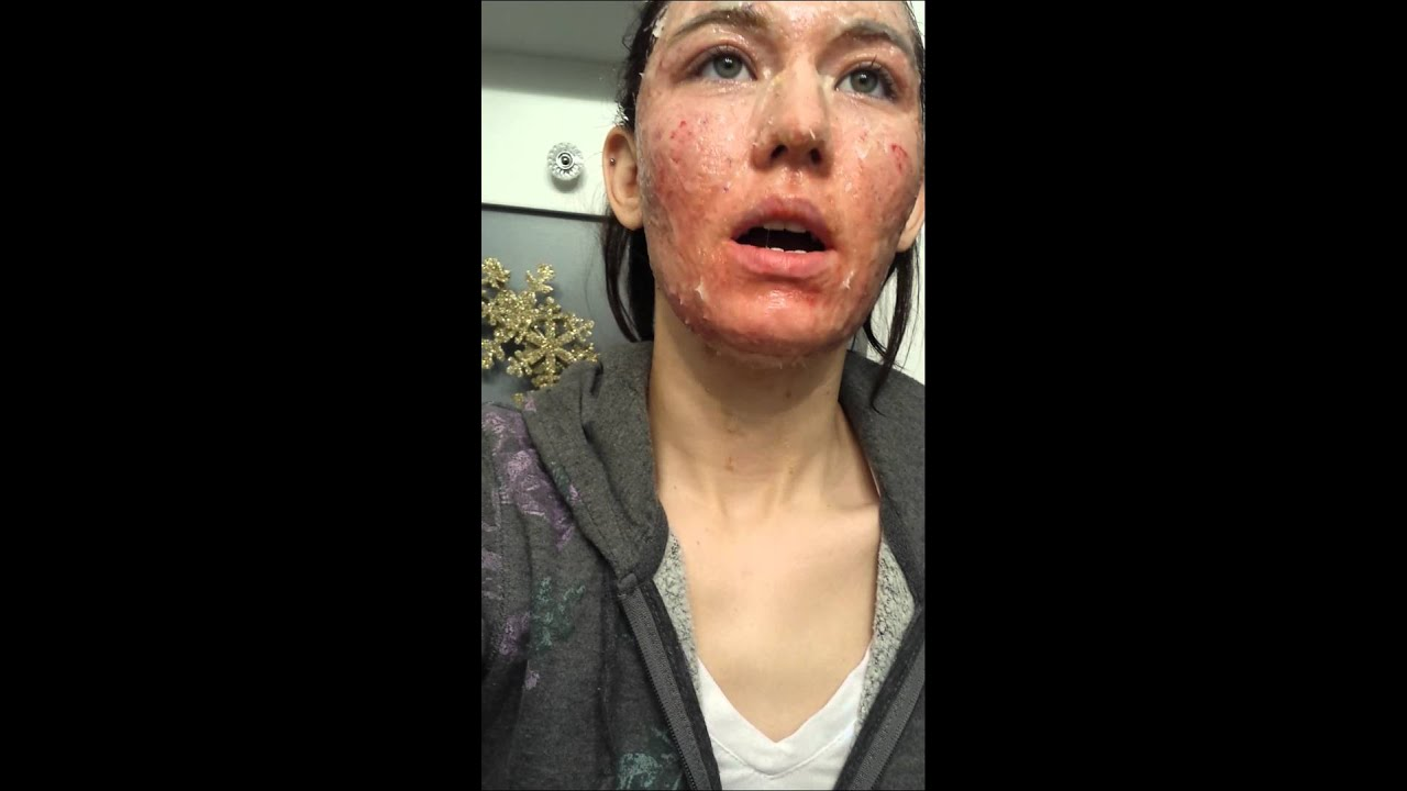 Sciton Laser Resurfacing Day Of Surgery Youtube