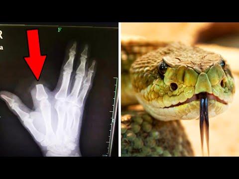 Pria potong jari setelah digigit ular; Turis Inggris digigit hiu saat snorkeling di Australia -  Tom