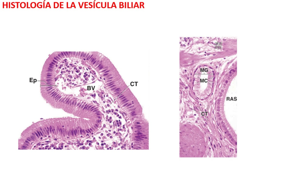 Cancer vesicula biliar histologia. Papiloma septo nasal