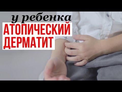 Атопический дерматит — Википедия