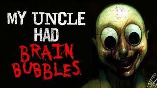 """""""My Uncle Had """"Brain Bubbles"""""""" Creepypasta"""