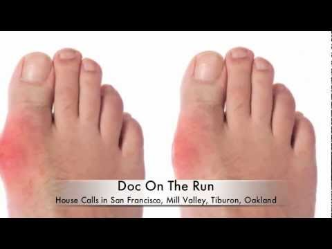 reduce uric acid build up how to reduce swelling in foot gout best diet for reducing uric acid