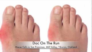 foods to eat uric acid does high uric acid always mean gout what happens if uric acid is more in human body