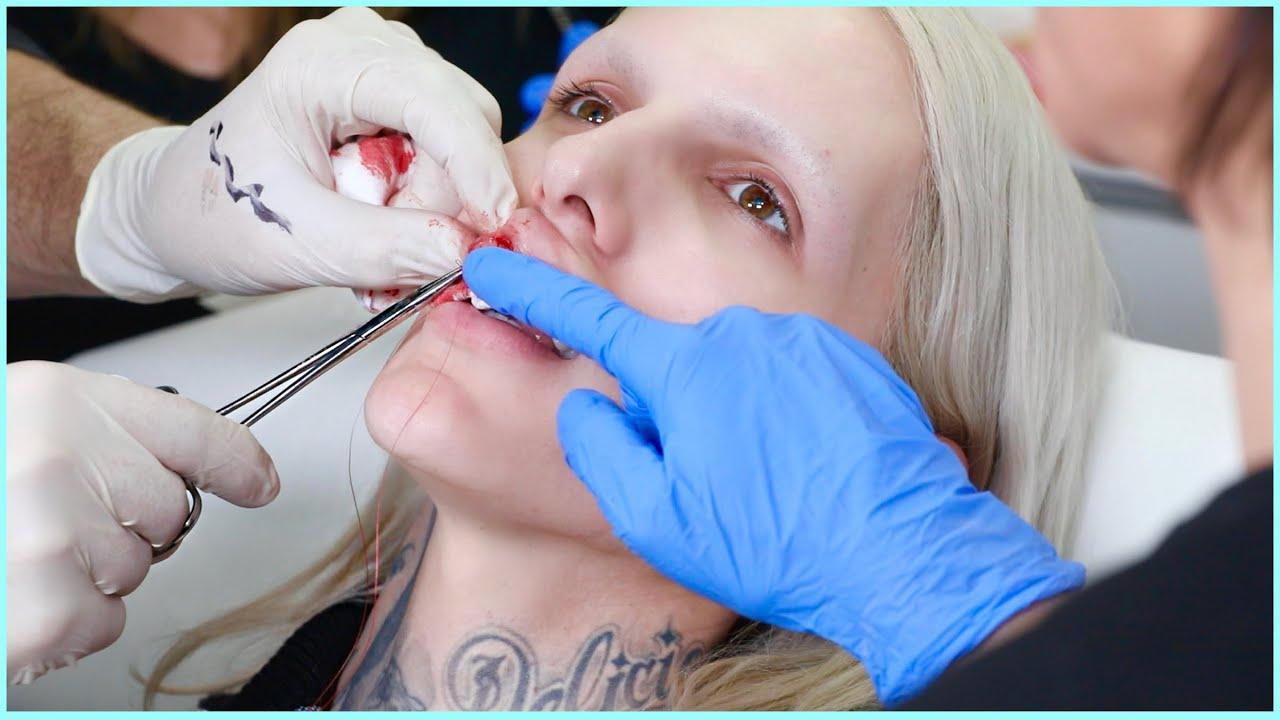 I Got Botched... Fixing My Deformed Lips