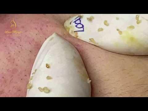 Acne Treatment For Beautiful Bright Skin (95) | Loan Nguyen