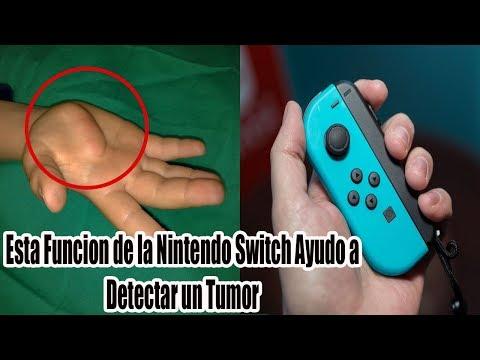 download Esta Funcion de la Nintendo Switch Detecto y Salvo de un tumor Peligroso a un jugador