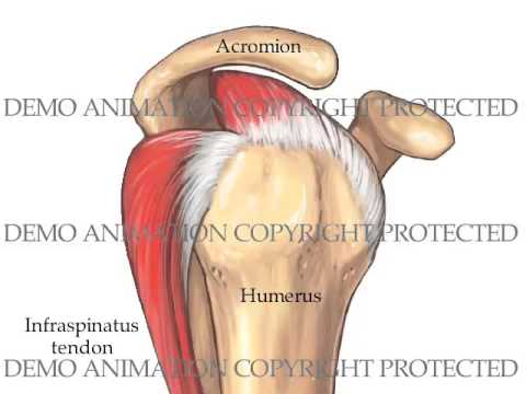 Traumatic Anterior Shoulder Dislocation