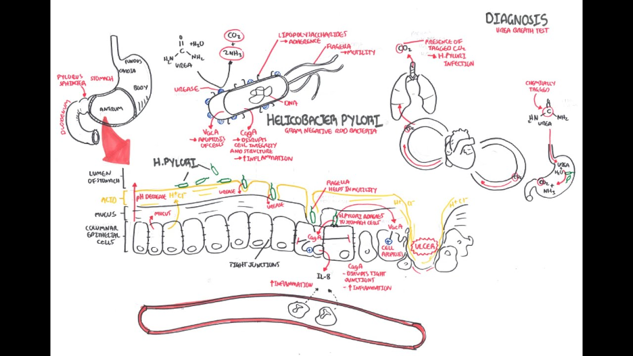Pathophysiology Of Peptic Ulcer Disease Diagram Camera Parts Microbiology Helicobacter Pylori Youtube