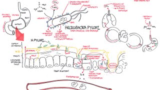Microbiology - Helicobacter Pylori (Ulcer)